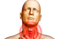 Отек гортани - осложнение флегмонозной ангины
