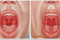 Симптомы вирусной и бактериальной ангины