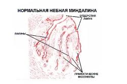 Строение небной миндалины