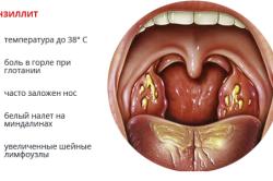 Основные симптомы тонзиллита
