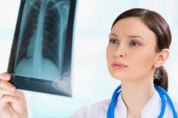 Рентген грудной клетки при ангине
