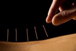 Иглоукалывание при лечении хронического тонзиллита