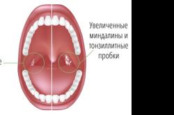 Признаки хронического тонзиллита