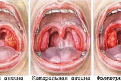 Основные типы ангины