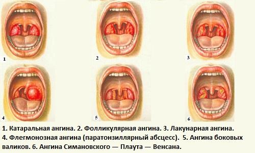 Виды ангин Тонзиллит