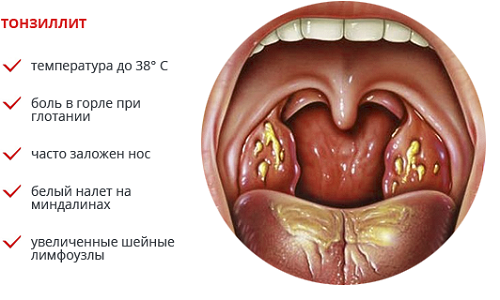 Декомпенсированная форма хронического тонзиллита
