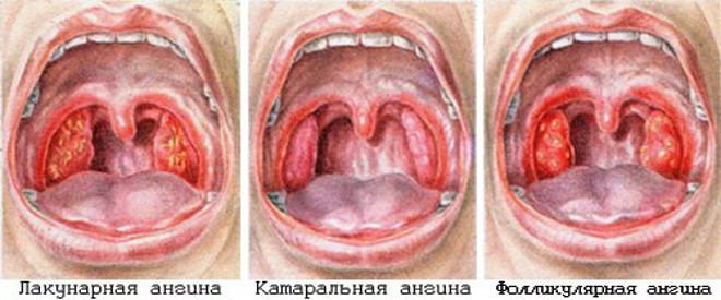 Ангина во время беременности