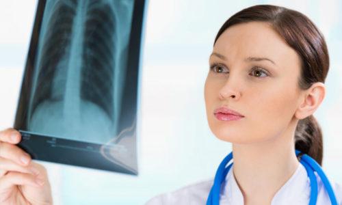 антибиотики от запаха изо рта