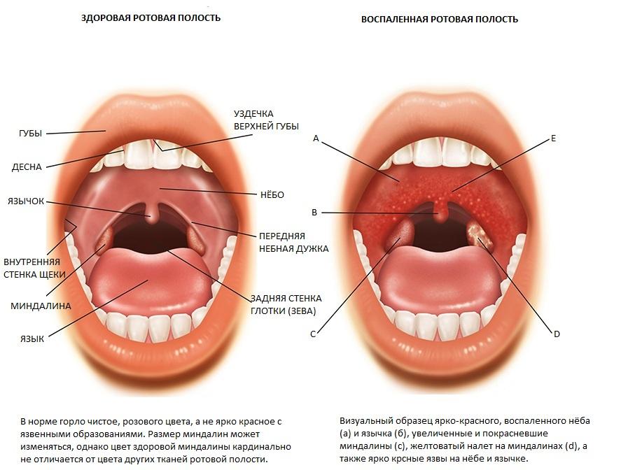 как проверить запах изо рта