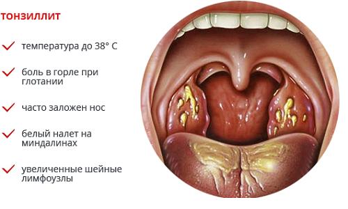фото горла тонзиллит